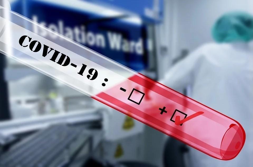 En septiembre habrá test serológicos sobre Covid-19 a 30 euros y podrán practicarse en casa